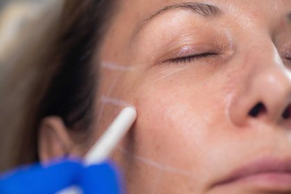Things to Consider When Choosing an Aesthetic Clinic